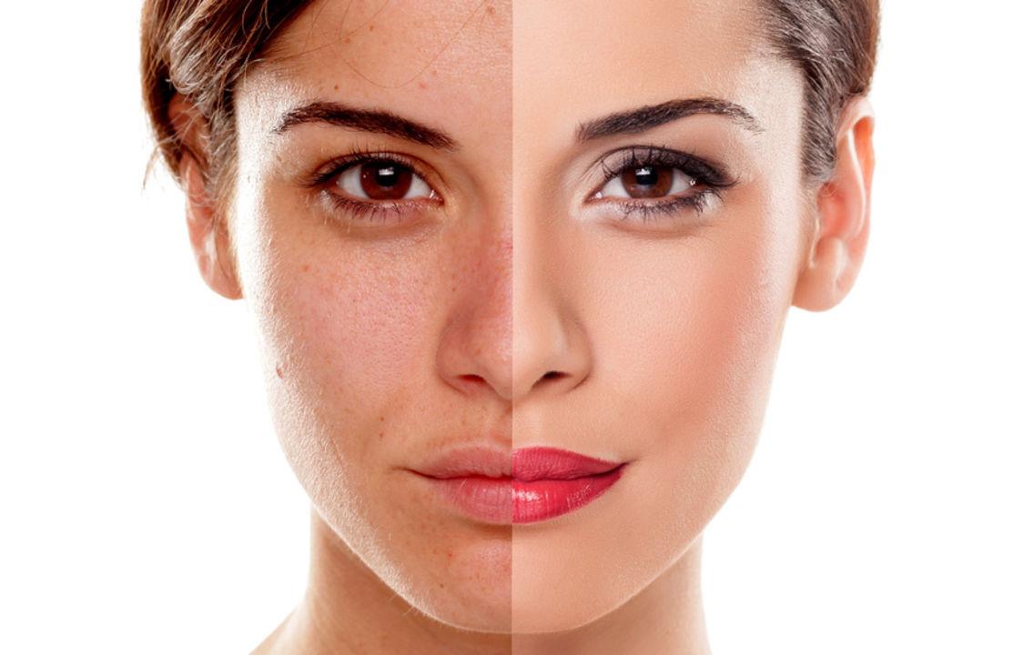Mikrodermabrasion als langfristige Beseitigung der Hautproblemen